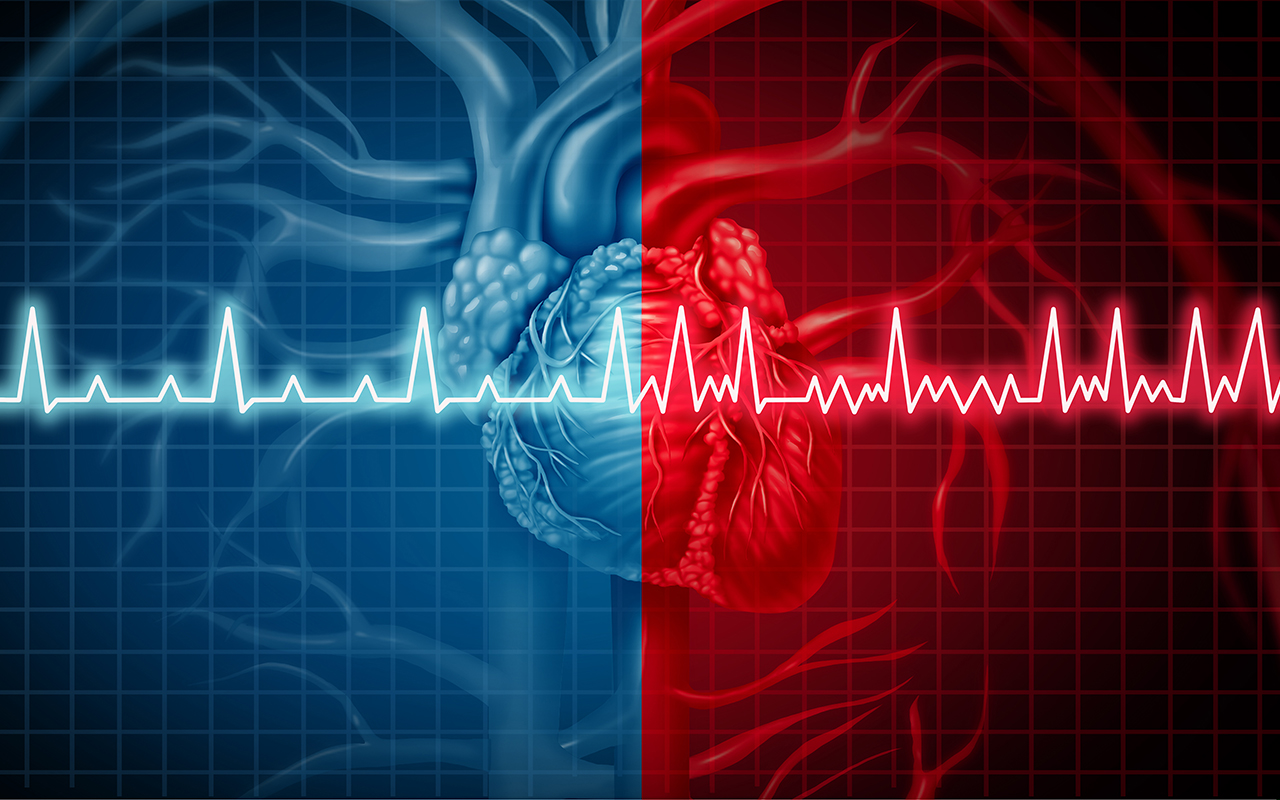 Preventing Arrhythmia After Heart Attack